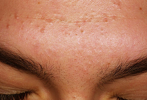 topical steroids acne scars