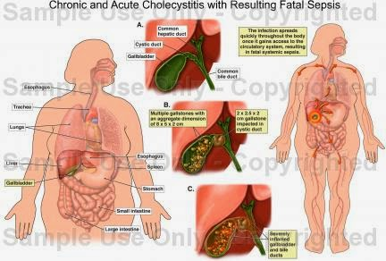 dr sherazi: cholecystitis, Skeleton