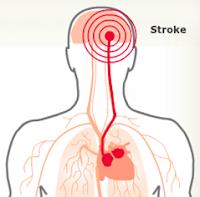 Mengenal Gejala Stroke Dan Pengobatannya