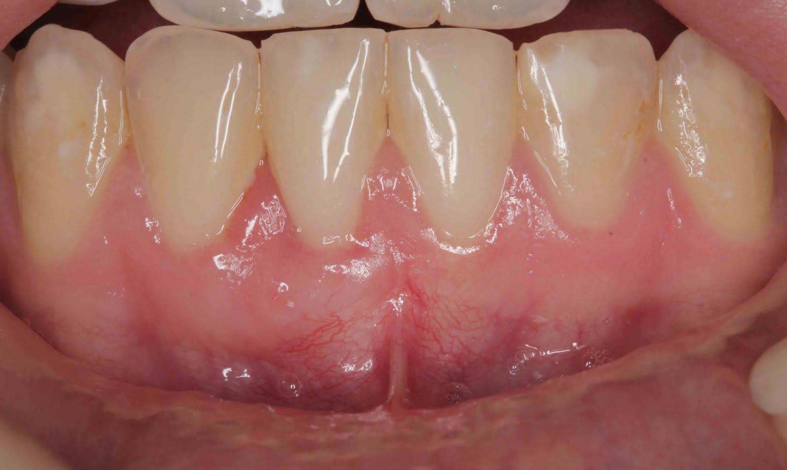 Gum Graft Cost Invasive Gum Grafting