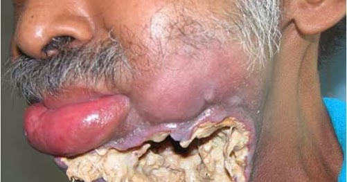 Humans Mouth 54