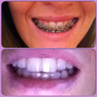 Before and after braces adult braces adult with braces