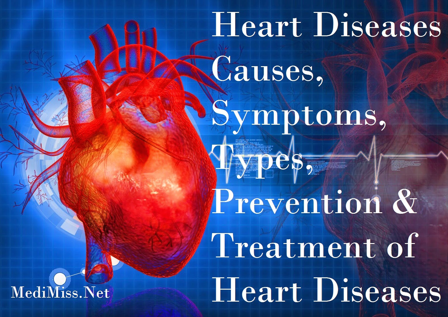 the causes diagnosis treatment and prevention of heart disease Heart attack (myocardial infarction) - an easy to understand guide covering  causes, diagnosis, symptoms, treatment and prevention plus additional in depth.