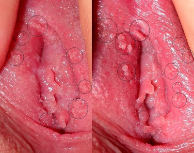 kutil kelamin wanita di vagina