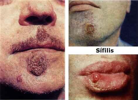 Sífilis enfermedad