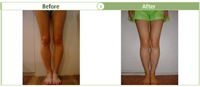 Bow Leg correction