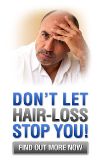 Hair Loss Treatment: http://naturalhealth2you.blogspot.coM