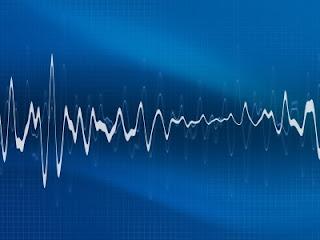 Pacemaker Atrial Fibrillation