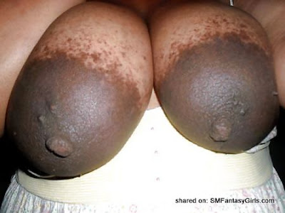 Humongously Large Areolas Dark & Beautiful