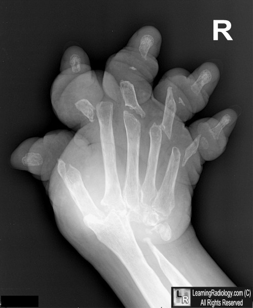 digital tomosynthesis hand joints arthritis assessment Results: higher odds for joint replacement were related to higher values of the standard deviation of slope lacunarity and to morpho- metric measures (eg, mil) conclusions: using digital tomosynthesis images for bone texture assessment may help distinguish condylar bone response in sif, potentially.