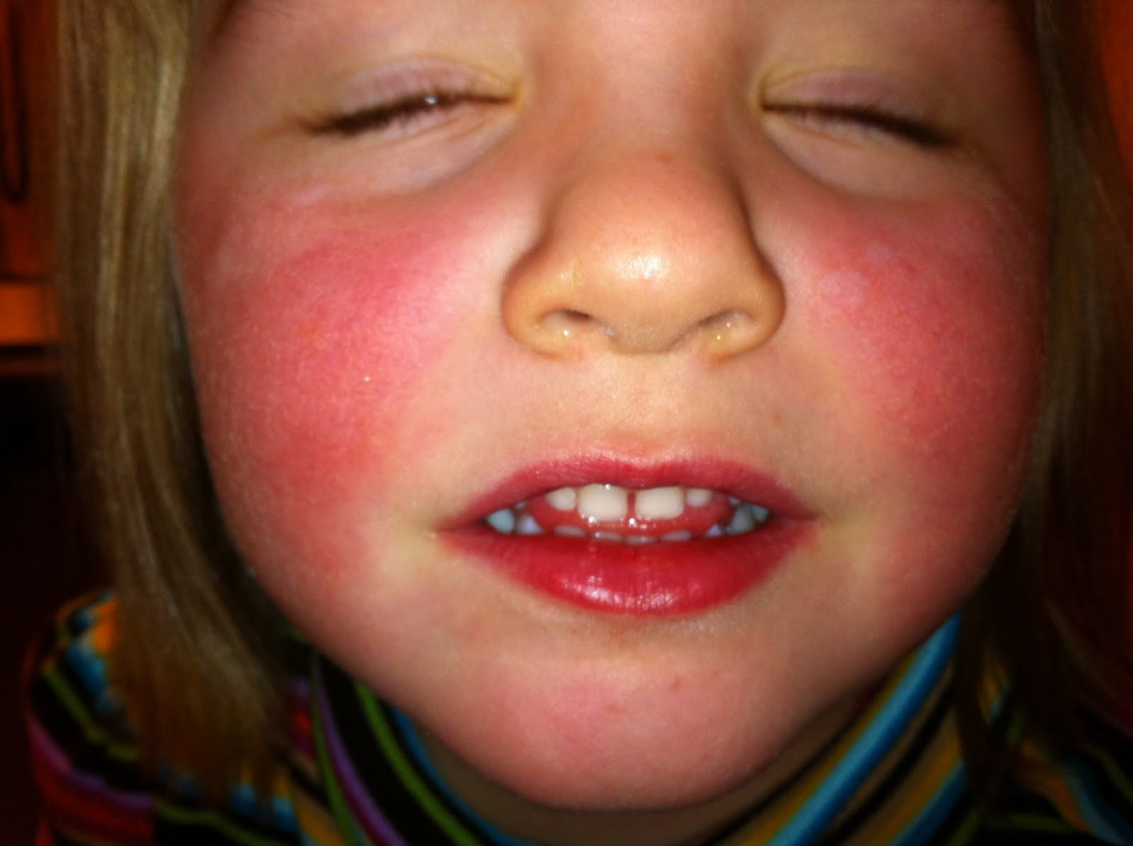 toddler facial rashes