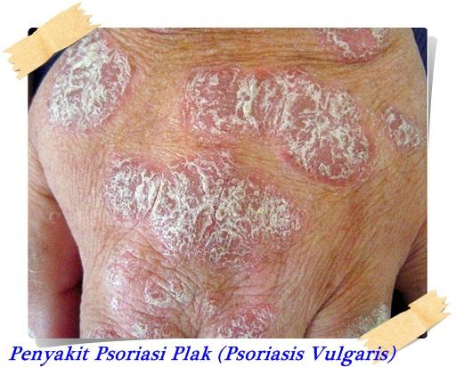 Penyakit Kulit Psoriasis Vulgaris (Plak) 1