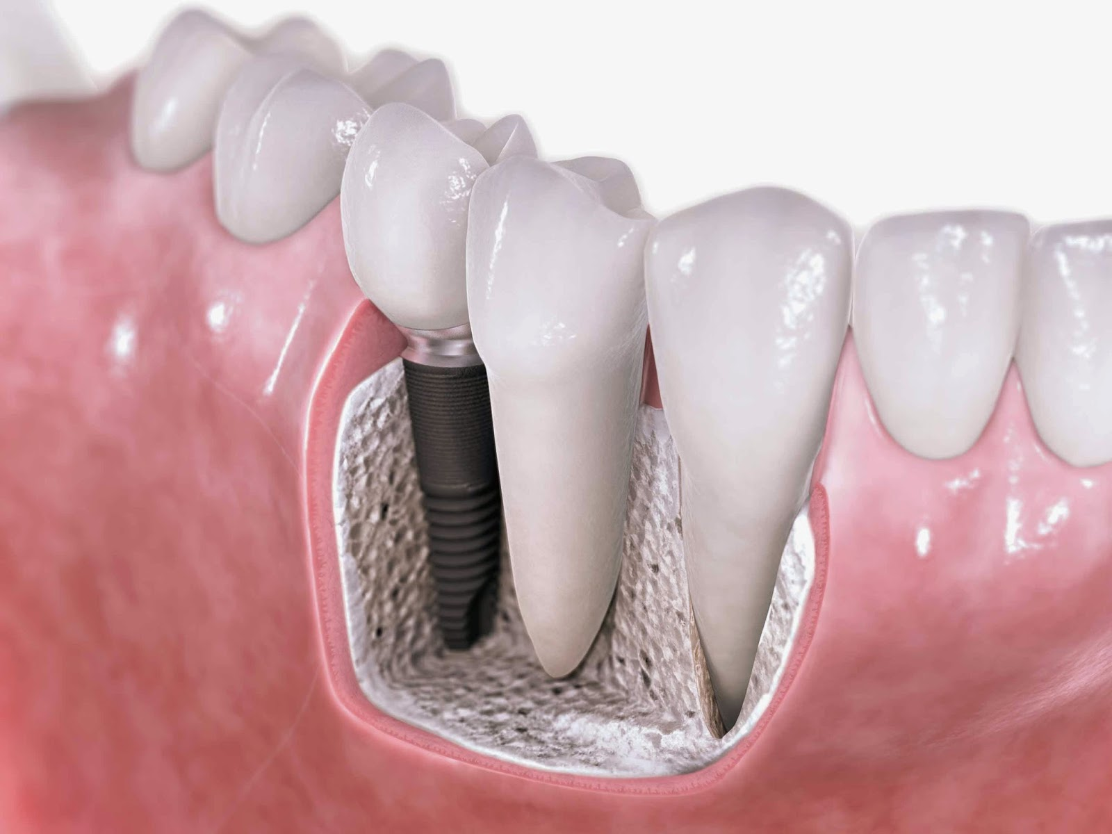 http://dentalimplantsindia.org/treatments-offered/dental-implants/