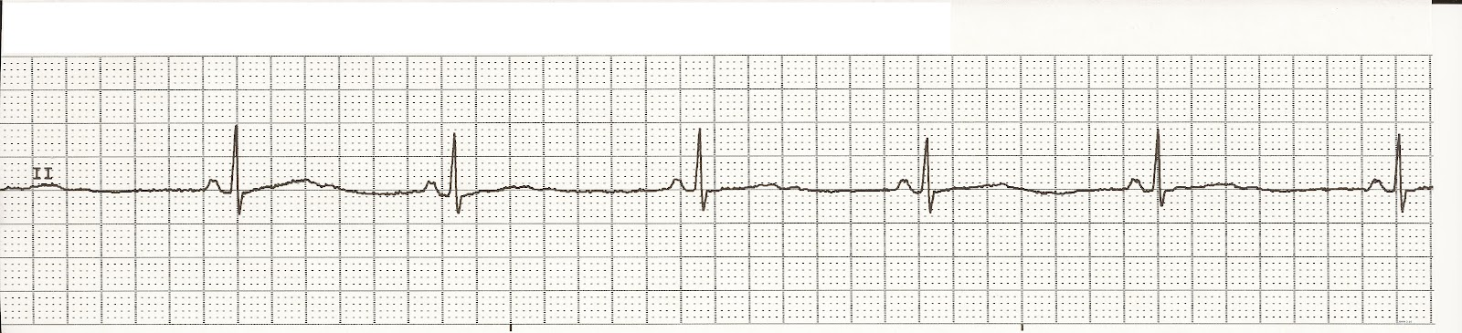 how to read ekg rhythm strips