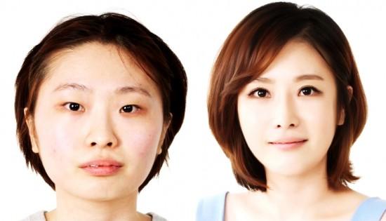 Hình ảnh trước và sau khi phẫu thuật thẩm mỹ Hàn Quốc