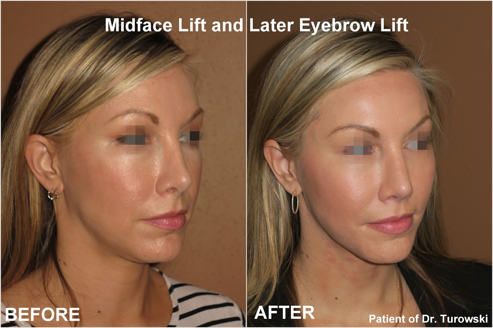 New Horizons Plastic Surgery Midface Lift And Lateral Eyebrow Lift