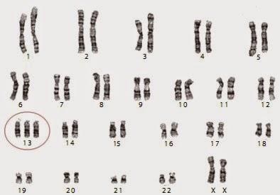 Trisomi  13 penderita sindrom Patau pada wanita.