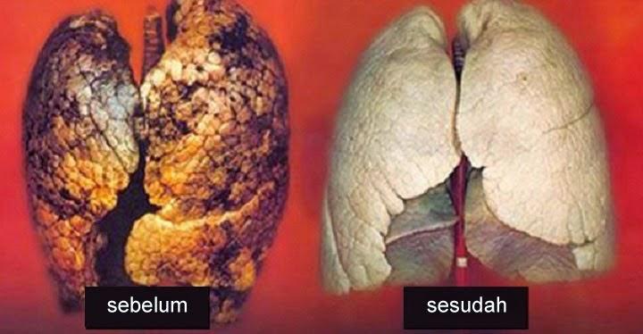 Cara Membersihkan Paru-paru Hanya dalam Waktu 3 Hari