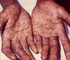 penyakit sipilis yang sudah menjalar ke seluruh tubuh