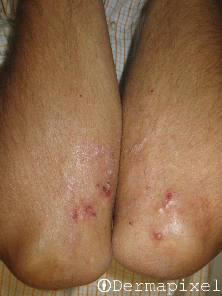 Se hinchan los pies de la psoriasis