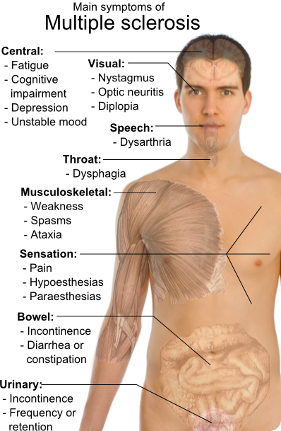 the symptoms of multiple sclerosis Multiple sclerosis is a chronic autoimmune disease that involves damage to the sheaths of nerve cells in the brain and spinal cord, affecting the central nervous system an autoimmune disease is a disease in which the body produces antibodies that attack its own cells and tissues it is unclear what triggers this attack although genetic susceptibility is thought to be a crucial determinant.