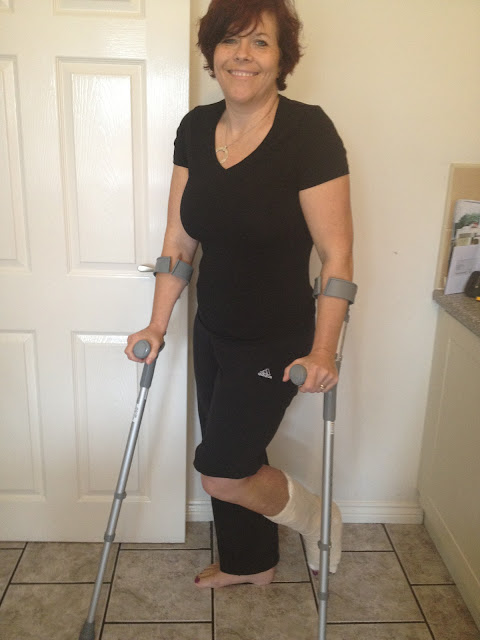 From Cornwall to Crutches - Trimalleolar Fracture-3.bp.blogspot.com