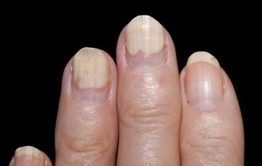 wellness lab health info fingernails