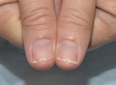 Treatment of the major diseases of the nails