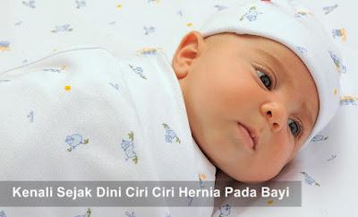 Ciri Ciri Hernia Pada Bayi Laki Laki