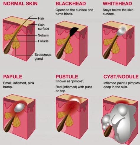 Diagram Cystic Acne Acne Scar Diagram ~ Elsavadorla