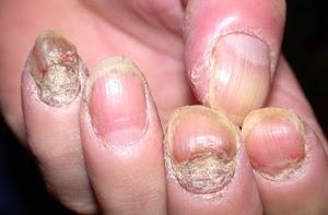Cara Cepat Menyembuhkan Penyakit Psoriasis