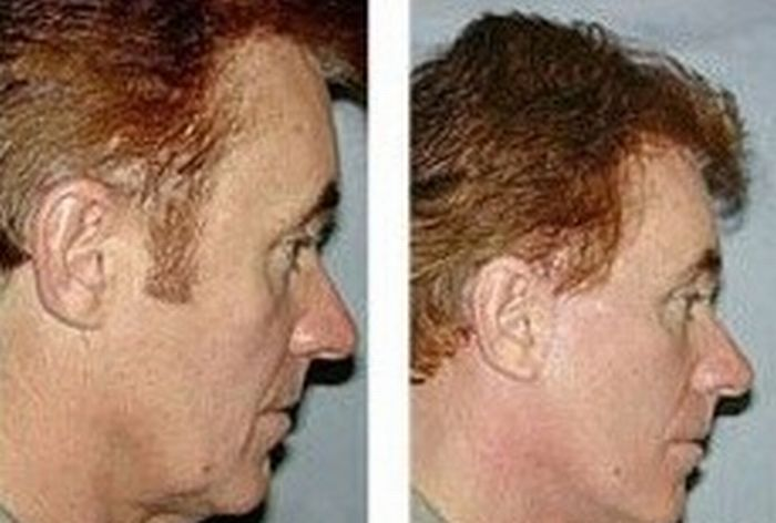 Facial And Yoga Rejuvenating Exercises That Can Keep Gents Appearing Younger
