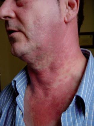 La eccema en la piel los síntomas el tratamiento