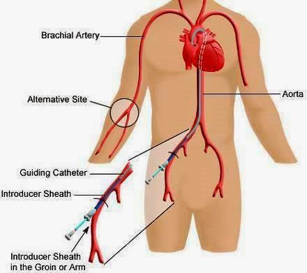 GsDUErv GAY in addition Unc2019s Cardiac Catheterization Lab Opens New Radial Lounge furthermore Skvaril Aim Radial 2013 Ny likewise QgcHpOQ0T9g in addition Transradial. on tr band in cardiac catheterization