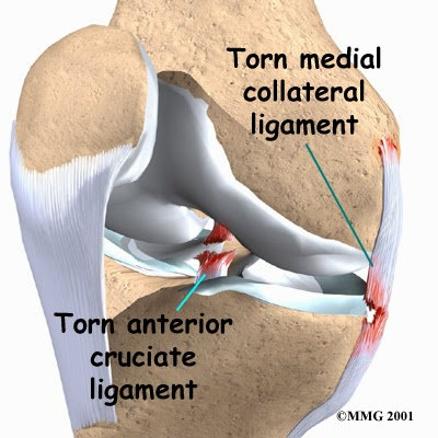 anterior cruciate ligament essay The worlds finest custom writing service - wwwmasterpaperscom quality proved by experience title anterior cruciate ligament: anatomy, symptoms and reconstruction.