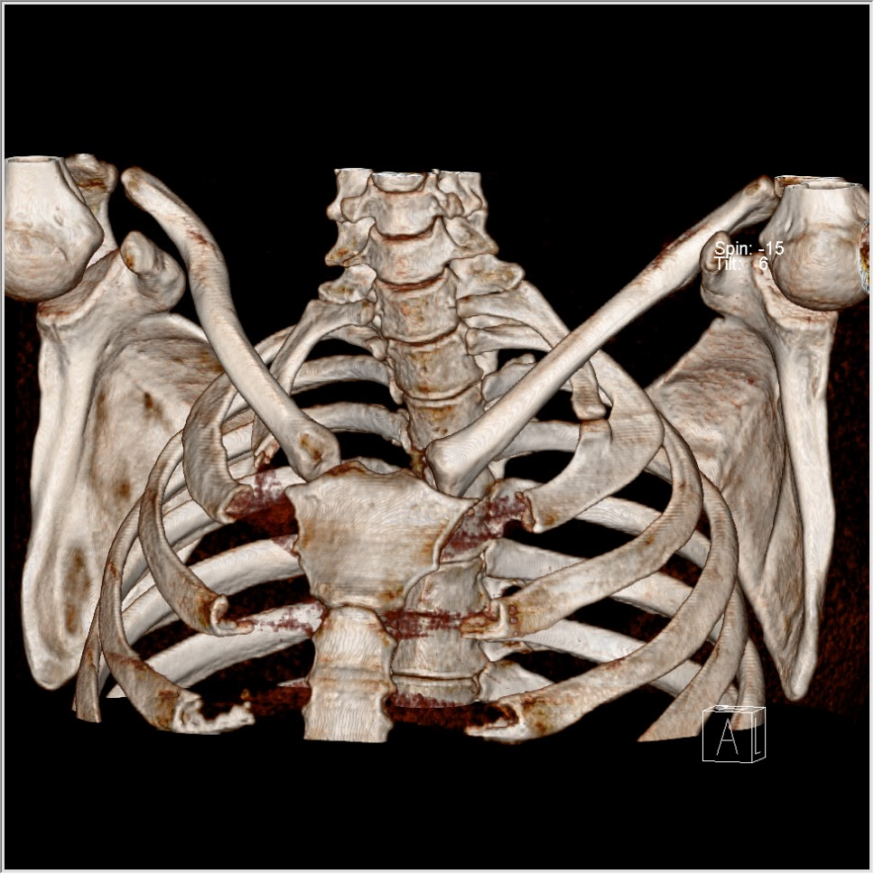 cervical rib with accessory articulation   The Third Eye - Radiology ...