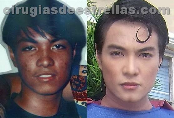 Herbert Chavez antes y después