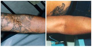 Pharrell Tattoo Removal