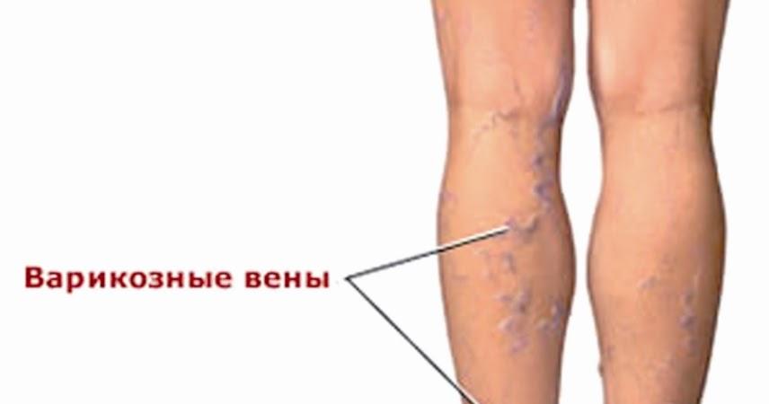 Болезнь варикозное расширение вен лечение