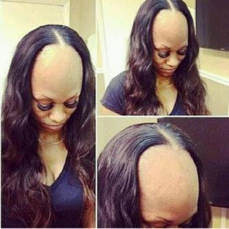 See what fixing of hair weaves could result to later in life see what fixing of hair weaves could result to later in life pmusecretfo Image collections