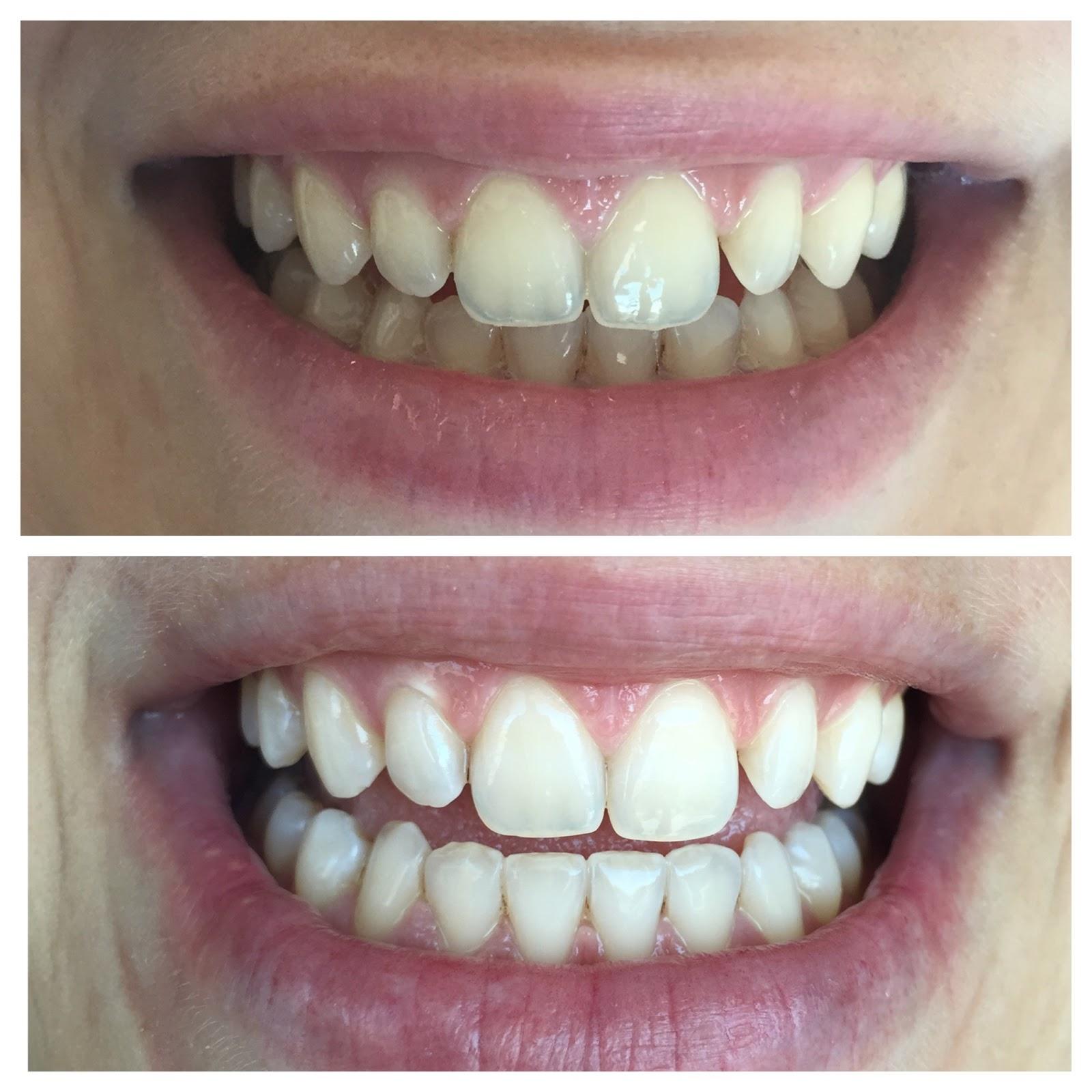 Diş Beyazlatmanın Doğal Yolları
