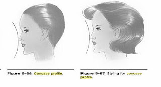 Convex facial profile