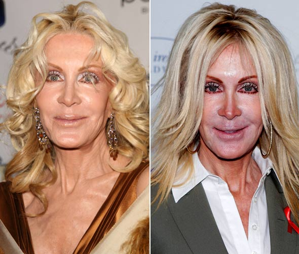 Joan Van Ark Plastic Surgery Before and After Nose Job, Facelift and ...
