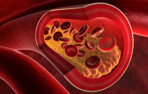 6 síntomas no tan evidentes de infarto (más vinculados a la mujer)