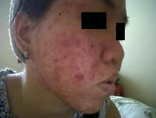 zarraz paramedical, masalah kulit sensitif, rawatan masalah kulit sensitif, skincare untuk kulit sensitif, cara menghilangkan jerawat, pencuci muka untuk kulit sensitif, tanda kulit sensitif