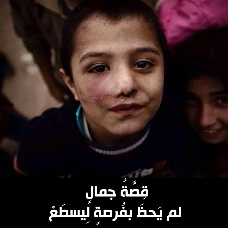 حكاية غزة في صور