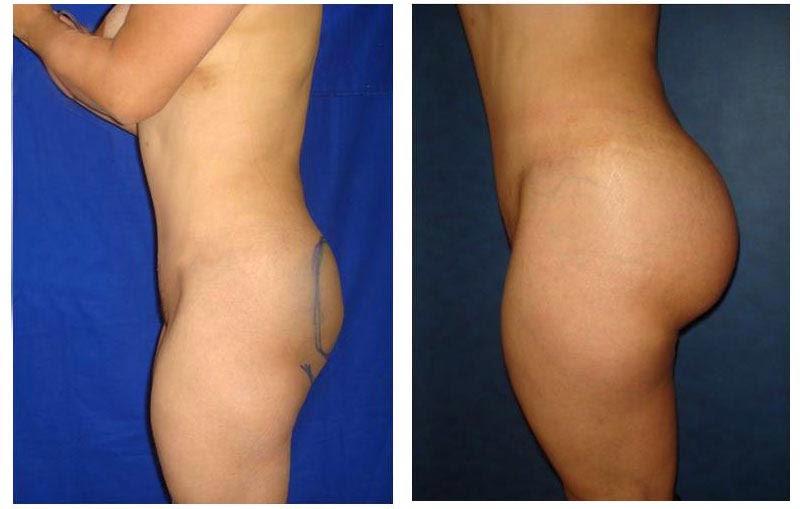 Inyecciones de grasa para aumento de pecho - Aumento