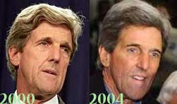 John Kerry Plastic Surgery Before and After Botox and Facelift ...