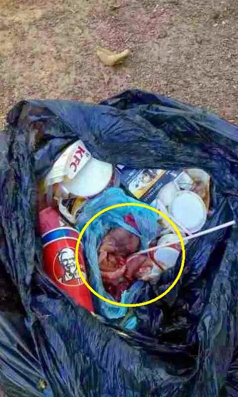Janin Dibuang Bersama Sisa Sampah KFC