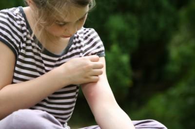 Tips menghindari gigitan nyamuk